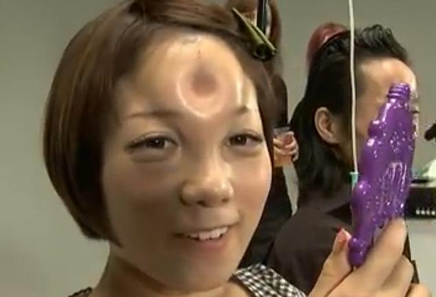 And You Thought Botox Was Making People's Foreheads LookWeird…..